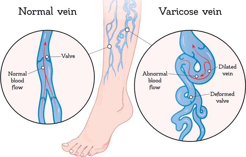 vein disease graphic